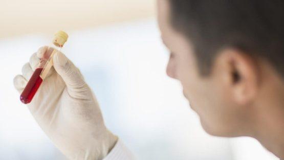 Вебинар Ирины Андриановой «Актуальность проведения исследований по определению CD4 лимфоцитов у ВИЧ-инфицированных. Внедрение инновационных технологий для проведения исследований»