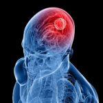 Вебинар Людмилы Коломийчук «Клинический случай. Оппортунистические инфекции: Криптококковый менингит»